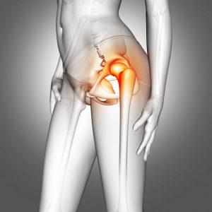 female-medical-figure-with-hip-bone-